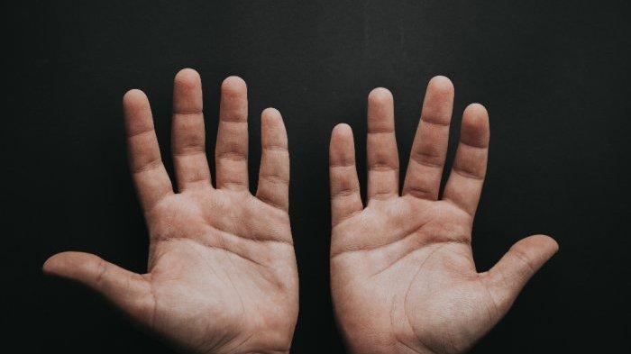 MILIKI Garis Tangan Seperti Ini, Artinya Masa Depan Anda Cerah