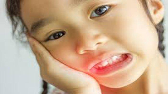 JIKA Anak Sakit Gigi Jangan Langsung Kasih Obat, Bahayanya Bisa Separah Ini!