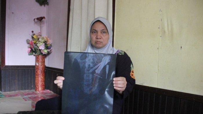 Sendok dan Paku Berkarat Bersarang Selama Dua Tahun di Perut Wanita Asal Kalimantan Ini