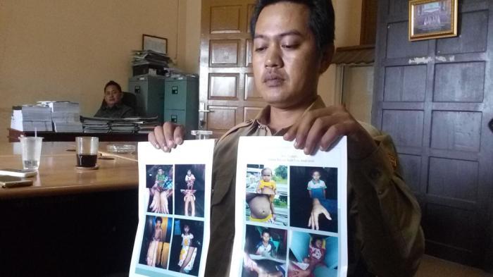 Sungai Tercemar, 142 Warga Dusun Sajingan Kecil Terserang Penyakit Kulit