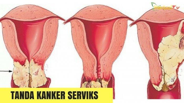 KANKER Serviks Menyerang Alat Reproduksi, Ini Ciri - ciri Kanker Serviks yang Perlu Diwaspadai !