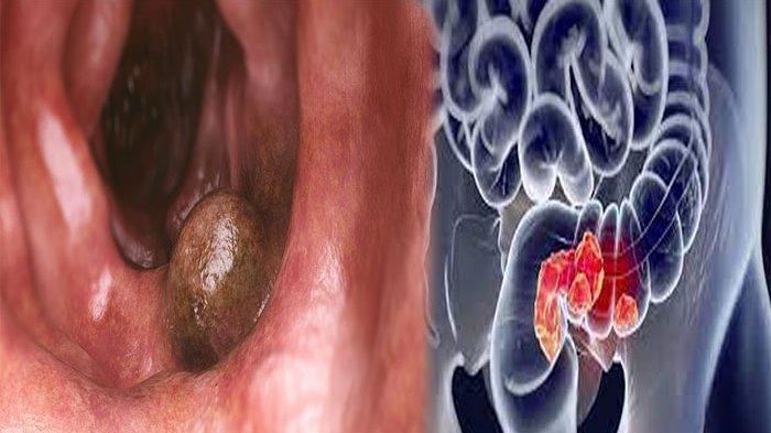Kanker Usus Dapat Disebabkan Oleh? Waspadai Ciri-ciri Kanker Usus Seperti Ini