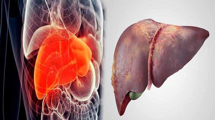 BISA Merusak Organ Hati, Jangan Lakukan 5 Kebiasaan Ini!