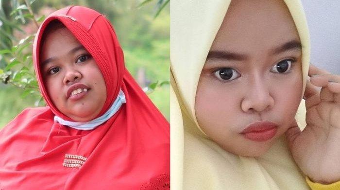 Kekeyi sebelum (kiri) dan setelah (kanan) melakukan filler hidung.