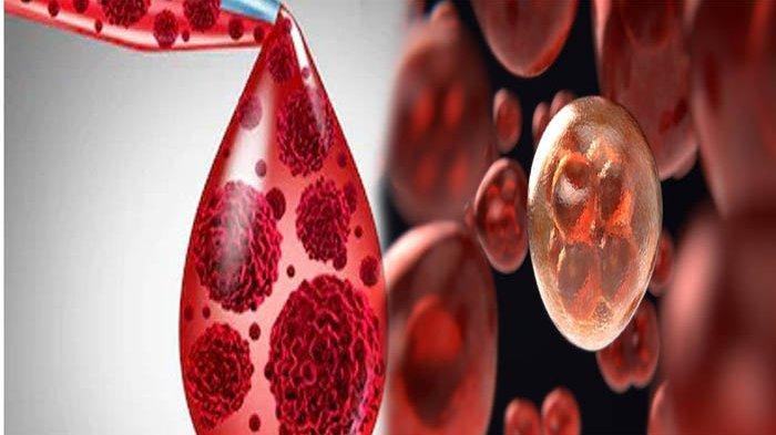 KENALI Gejala Awal Kanker Darah, Apa Itu Kanker Darah ? Ini Penyebab Kanker Darah & Pengobatannya