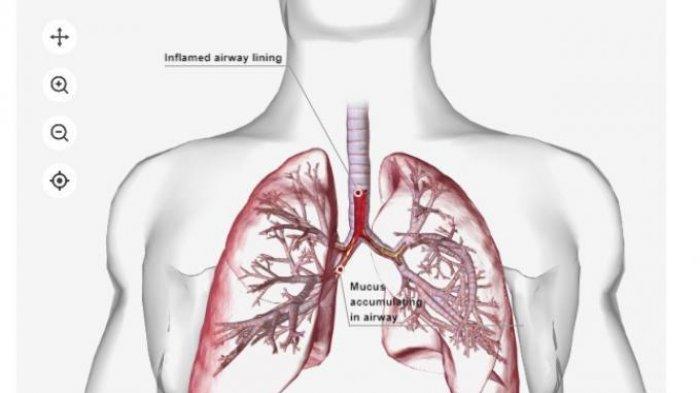 KENALI Gejala Penyakit Pneunomonia, Peradangan Paru-paru Ditandai Batuk Berdahak dan Demam