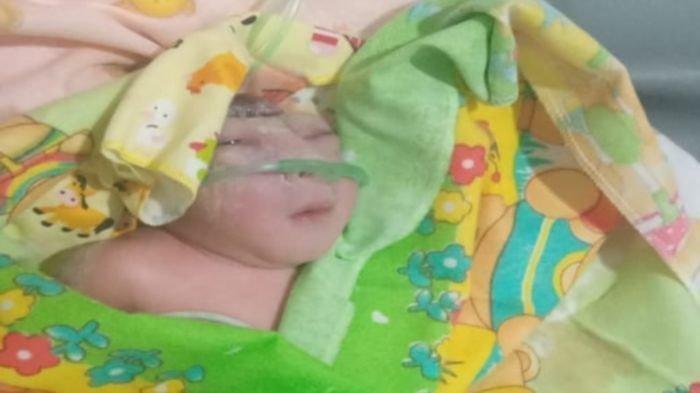 Kisah Bayi Tanpa Tempurung Kepala, Lahir di Penghujung Tahun 2019, Terkendala Biaya Pengobatan