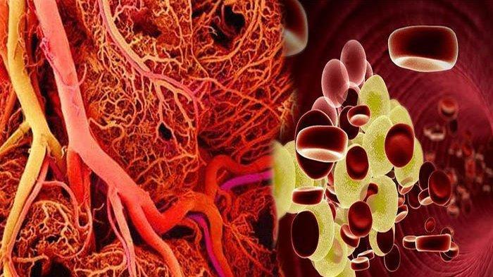 KUNYIT Mampu Bersihkan Pembuluh Darah, Ini 4 Makanan Bisa Cegah Serangan Jantung dan Stroke