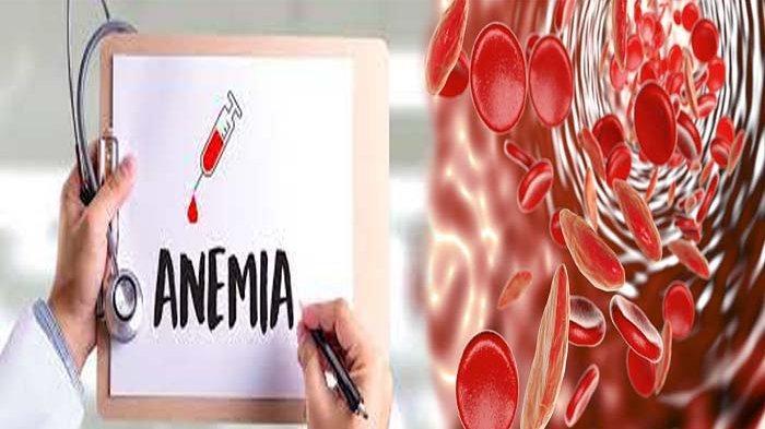 MENGAPA Aliran Darah Penderita Anemia Sangat Cepat ? Ini Makanan Penambah Darah untuk Anemia