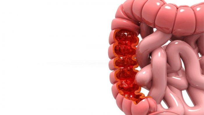 Berjalan Kaki Dapat Mencegah Penyakit Kanker Usus Kanker Payudara & Diabetes, Ini Penjelasannya !