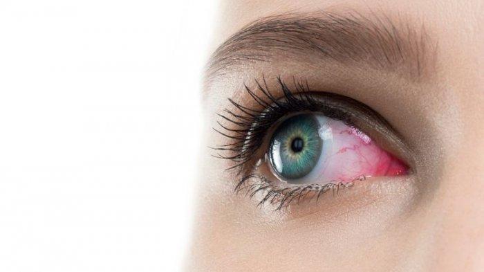 OBAT Sakit Mata Alami, Yuk Coba 4 Bahan Ini untuk Alternatif Obat Herbal Sakit Mata Aman dan Manjur