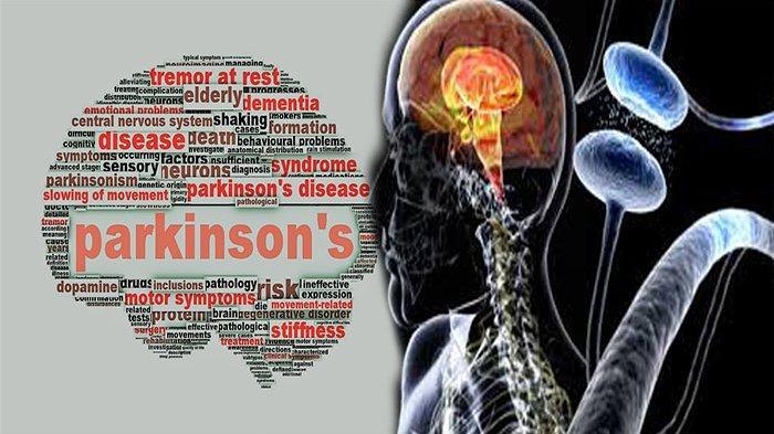 Parkinson Penyakit Apa ? Kenali Gejala Penyakit Parkinson dan Penyebab Penyakit Ini