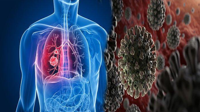 INILAH Penyakit - Penyakit Saluran Pernapasan yang Disebabkan Virus