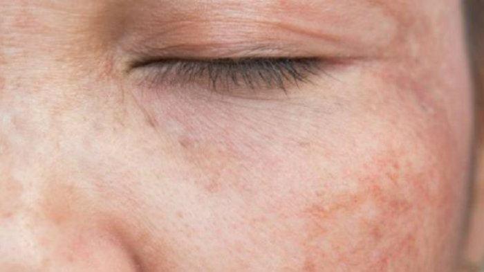 PENYEBAB Kanker Kulit Wajah, Kenali Sejak Dini Gejala Kanker Kulit Wajah