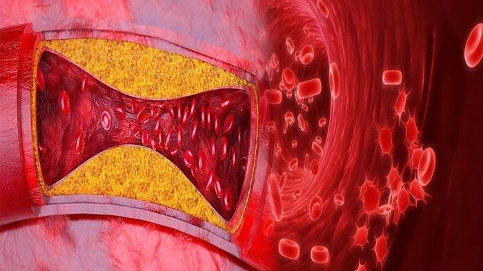 PENYUMBATAN Pada Pembuluh Darah yang Disebabkan Kolesterol yang Meningkat Disebut ?