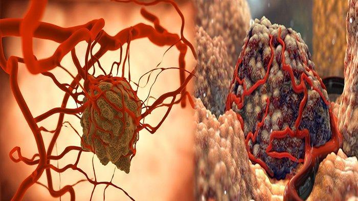 PERBEDAAN Tumor dan Kanker, Kenali Jenis Tumor Jinak Semi Ganas Hingga Ganas