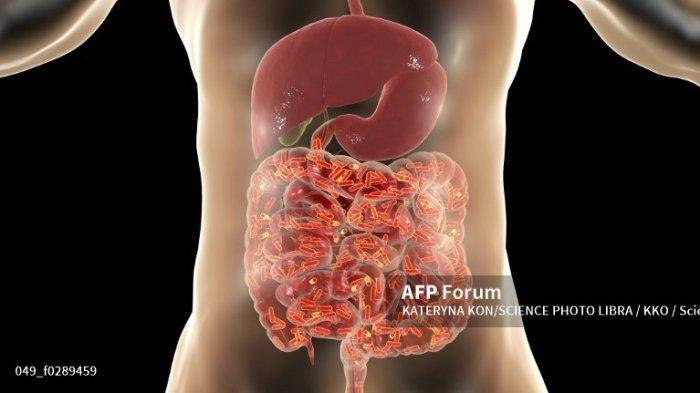 Cara Mendefenisikan Probiotik dan Jenis Probiotik , Serta Efek Samping Bagi Tubuh