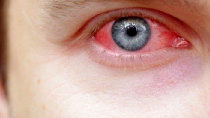 Benarkah Sakit Mata Bisa Menular Melalui Tatapan? Ini Penjelasan Doktes Spesialis Mata!