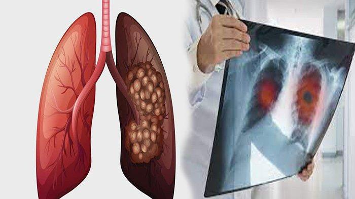 SALAH SATU Pemicu Kanker Paru-paru, Berikut Kebiasaan yang Dapat Memicu Penyakit Kanker Paru-paru !