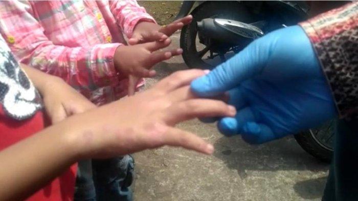 Penularan Scabies Pada Warga di Pontianak Bukan Dari Hewan Peliharaan Melainkan Jenis Tungau