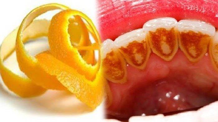 TAK HANYA Memutihkan Gigi, Kulit Jeruk Bisa Bersihkan Karang Gigi dengan Cepat, Begini Caranya!
