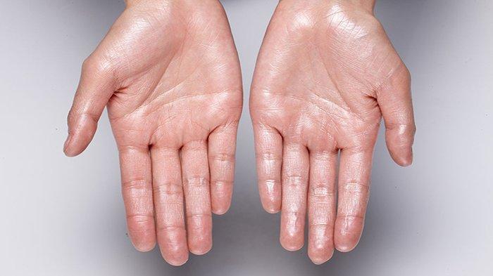 TELAPAK Tangan Sering Berkeringat, Hati-hati Bisa Jadi Anda Derita Kanker