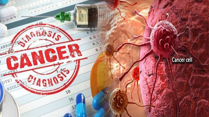 TINGKATAN Stadium Pada Penyakit Cancer, Apa Itu Penyakit Cancer & Gejala Cancer?