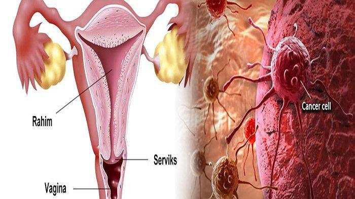VIRUS Penyebab Kanker Serviks dan 6 Penyebab Kanker Serviks, Apa Ciri Ciri Kanker Serviks ?