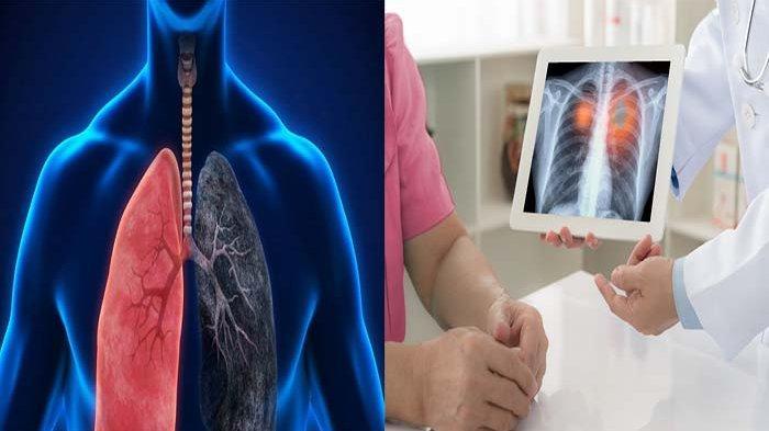 Gejala Bronkitis yang Sering Diabaikan, Kenali Penyakit Infeksi Paru-Paru Ini
