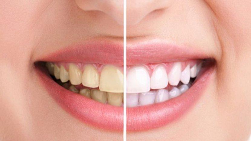 cara-mudah-membersihkan-gigi-kuning-hanya-dengan-bahan-alami-putih-kinclong-seketika.jpg