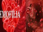 apa-itu-penyakit-hemofilia-gejalanya-suka-memar-ini-9-gejala-hemofilia-cara-mengobatinya.jpg