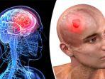 ciri-ciri-kanker-otak-waspadai-gejala-stadium-awal-pada-kanker-otak.jpg