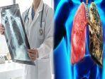 kebiasaan-yang-dapat-memicu-penyakit-kanker-paru-paru-peneliti-telah-membuktikannya.jpg