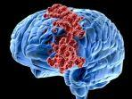 kenali-penyebab-kanker-otak-ini-ciri-ciri-kanker-otak-gejala-kanker-otak.jpg
