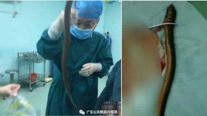 Usus Pria Cina Robek Digigit Belut, Dimasukkan Melalui Anus