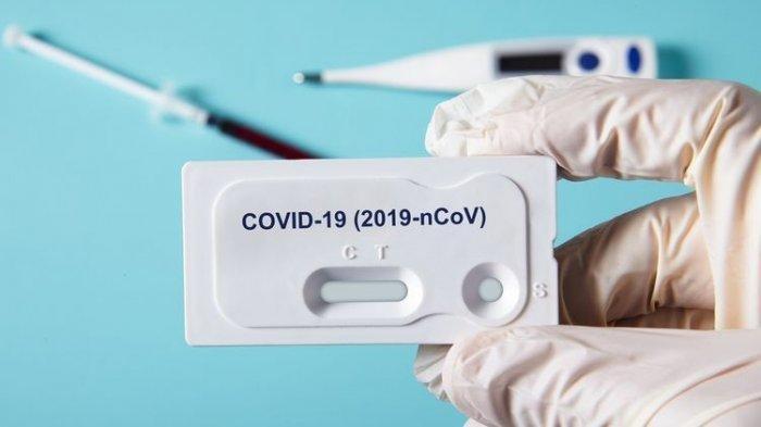 Pemerintah Diminta Terbuka Soal Jebloknya Tes Covid-19