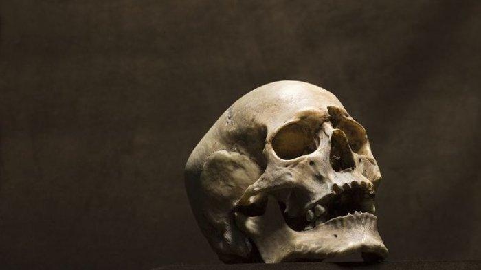 Kerangka Sepasang Kekasih Berusia 1.500 Tahun Didapat Masih Berpelukan