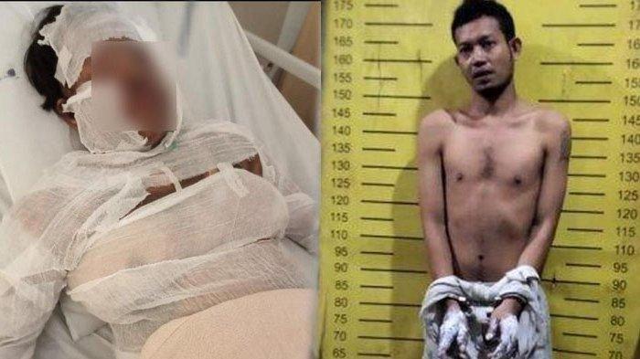 Suami Bakar Istri, Lalu Ditembak Polisi, Pelaku Bawa Selingkuhan ke Rumah