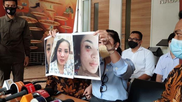 Nindy Ayunda menunjukkan luka lebam akibat dugaan KDRT yang dilakukan Askara Parasady Harsono, suaminya, di Komnas Perempuan di Jakarta Pusat, Selasa (16/2/2021).