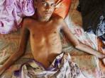 muslim-rohingya-menderita-sakit.jpg