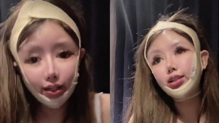 Alami Efek Samping Parah, Gadis 16 Tahun Pecandu Operasi Plastik Ini Ungkap Alasannya Tak Kapok