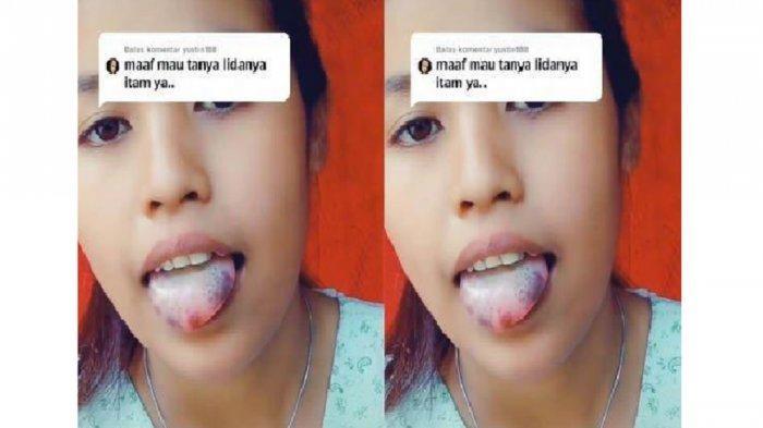 Kisah Gadis Miliki Lidah Hitam Viral, Mengaku Sulit Ucap Huruf R dan S, Ahli Ungkap Penyebabnya