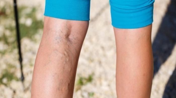 Penyebab Munculnya Varises yang Jarang Diketahui: Berdiri Terlalu Lama hingga Pakai Celana Ketat