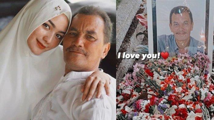 Ini Penyebab Meninggalnya Iwan Siregar Ayah Kandung Aktris Citra Kirana, Mertua Rezky Aditya