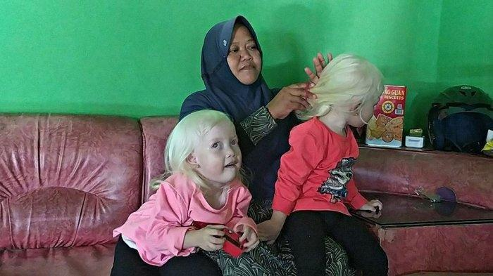 Sempat Dikira Bule, Dua Balita Perempuan Albino Kembar di Wonogiri Ini Ternyata Kelahiran Banten