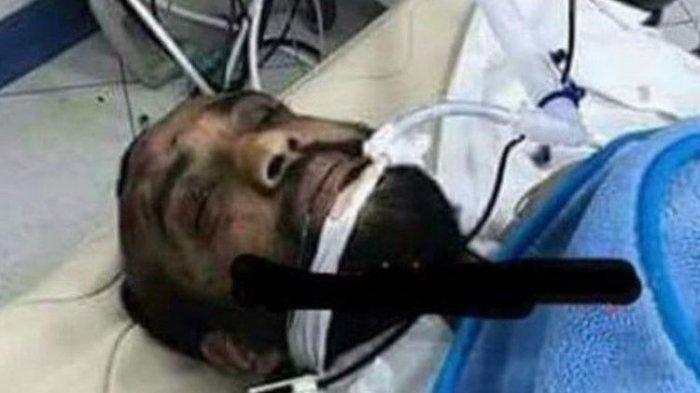 Pria Pelaku Penembakan Gereja Kristen Koptik Mesir Ini Selamat Setelah Dioperasi di RS