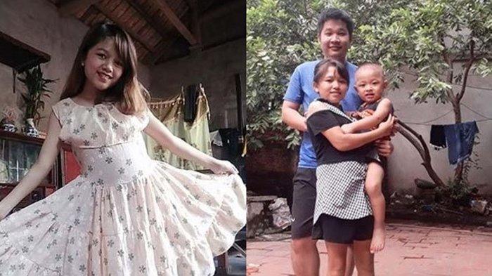 Punya Tubuh Mungil Tinggi 1,2 Meter, Istri Ini Dulu Minder Kini Bersyukur Disayang Mertua Usai Hamil