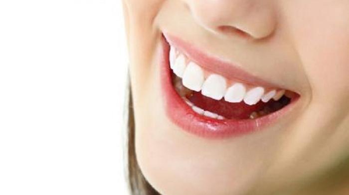 Selain ke Dokter, Ini Tiga Cara Atasi Sakit Gigi