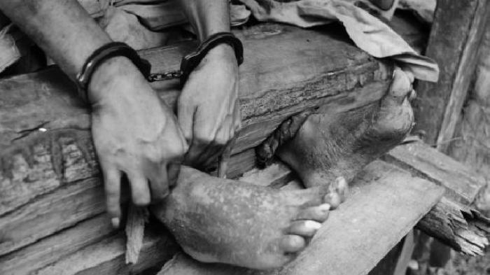 Kisah Miris Bocah di Aceh yang Disiksa, Dipasung & Dipaksa jadi Pengemis, Orangtua Jadi Tersangka