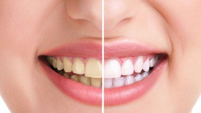 Tips Memutihkan Gigi Kuning Secara Alami: Gunakan Kulit Pisang